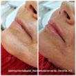 Коррекция возрастных губ
