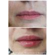 коррекция губ филлерами