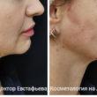 коррекция овала лица мезонитями_1
