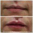 коррекция возрастных изменений губ
