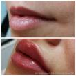 увеличение объема губ